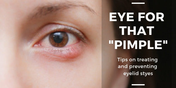 Tips on treating and preventing eyelid styes